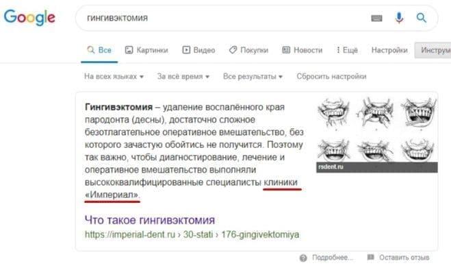 """Расширенный сниппет в Google по запросу """"гингивэктомия"""""""